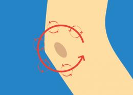 Beispiel für NOVAFON Anwendung bei bursitis