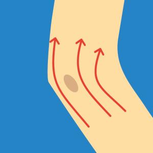 Beispiel für NOVAFON Anwendung bei bursitis2