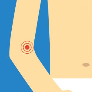 Beispiel für NOVAFON Anwendung bei epicondylitis