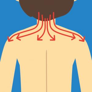 Beispiel für NOVAFON Anwendung bei Myogelose, Muskelverhärtung