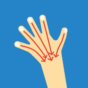 Beispiel für NOVAFON Anwendung bei oedem
